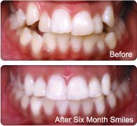 Before and After of Six Month Smiles Cosmetic Braces System - Short Term Ortho System that I do right in my office.