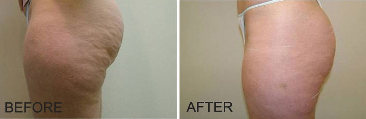 Notice the noticeable reduction in the appearance of cellulite on the buttocks and upper thighs.