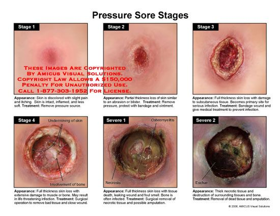 pictures management bedsores causes symptoms sores also treatment read bed