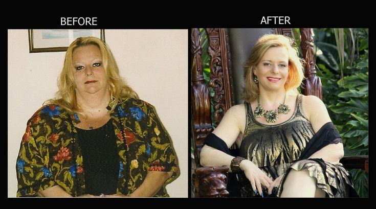 Weight Loss Before and After: I Lost An Amazing 260 Pounds To Save My Life