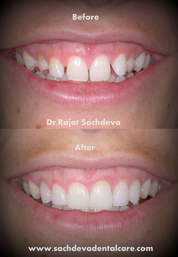 Smile Makeovers Center in Delhi   Dental Smile Makeovers Delhi  http   www sachdevadentalcare com smile makeover html   dental implant  clinic   Pinterest. Smile Makeovers Center in Delhi   Dental Smile Makeovers Delhi