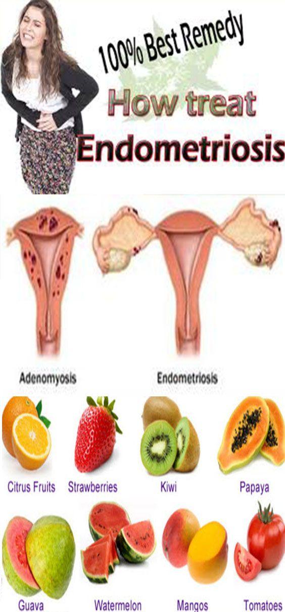 How to Treat Endometriosis