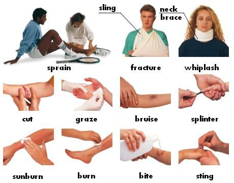 Injury : sprain, fracture, whiplash, cut, graze, bruise, splinter, sling, neck brace, sunburn, burn, bite, sting