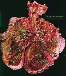 Cystic fibrosis   definition of cystic fibrosis by Medical dictionary