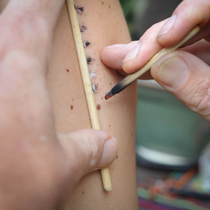 Person receives burns prior to receiving the Kambo.  The superficial burns allow the Kambo to enter the lymphatic system.  Burns heal quickly and fade over time.