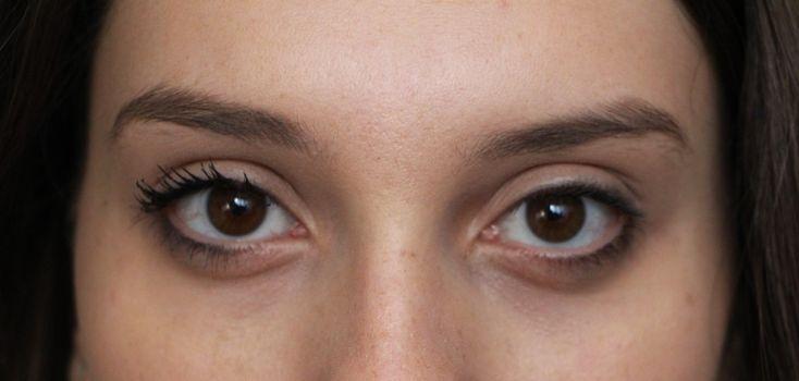Suco Detox Para Eliminar as Olheiras【GARANTIDO】 | Dicas de Saúde
