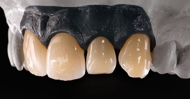 5 Tips for processing zirconia - by Knut Miller.  https://blog.ceramill.com/posts/10-5-tips-for-processing-zirconia