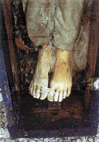 Legs of John Torrington of the Franklin expedition, buried in permafrost in 1846.