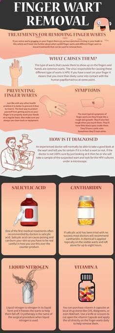 Finger Wart Removal.png (555×1600) <a class=pintag searchlink data-query=#wart data-type=hashtag href=/search/?q=#wart&rs=hashtag rel=nofollow title=#wart search Pinterest>#wart</a> removal #skin wart removal #home remedies for warts #ge