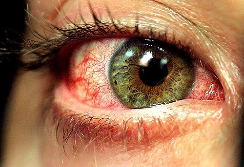 Blood shot eyes can be a sign of Vitamin B2 deficiency.