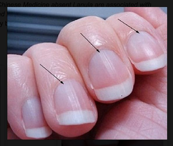 """Low Energy? Look At Your Fingernail Moons 