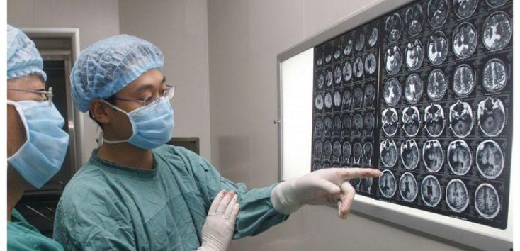 À l'occasion de la Journée mondiale contre l'épilepsie, Sciences et Avenir revient sur ce qu'il fautsavoir decette maladie quitouche 500.000 Français ; comme les gestes