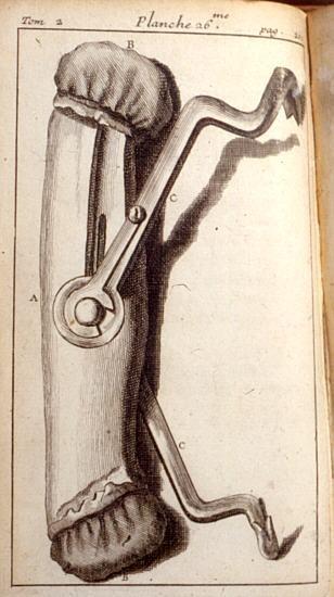 Pélican à deux branches de Pierre Fauchard (https://pinterest.com/pin/287386019942061326) - Planche 26, édition de 1786.