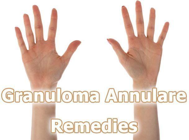 Granuloma Annulare Remedies include Apple Cider Vinegar, Avocado paste, Coconut Oil, Vitamin E, Aloe Vera, Milk of Magnesia, Green Tea and Tea Tree Oil.
