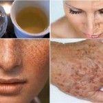 Receita caseira para eliminar manchas e imperfeições das mãos e do rosto! 100% Natural!