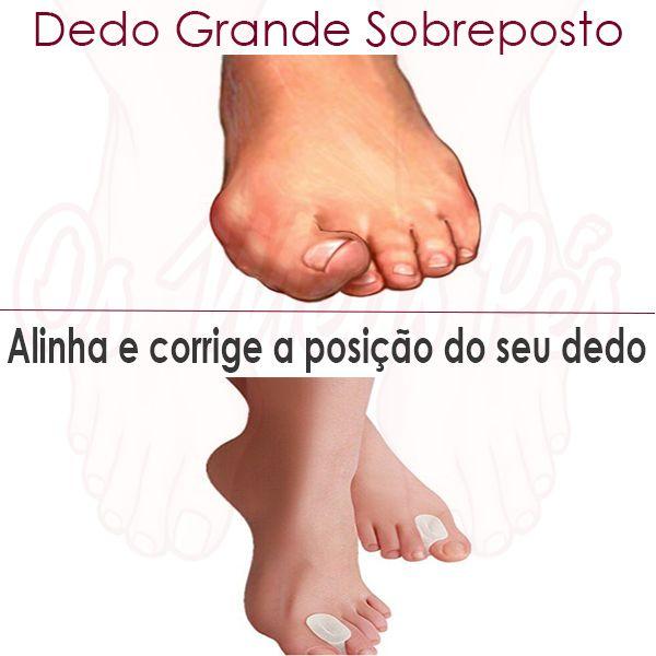 O separador de dedos tipo carrete é usado para separar o dedo grande do pé do seguinte. É sempre usado no pós operatório de uma cirugia aos joanetes.