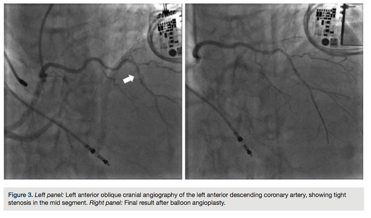 From: Stefano Rigattieri, MD, Cristian Di Russo, MD, Alessandro Sciahbasi, MD, and Paolo Loschiavo, MD. Multivessel Transradial Percutaneous Coronary Intervention in a Patient with a Single Coronary Artery. In: Cath Lab Digest 2013;21(6)46-47.