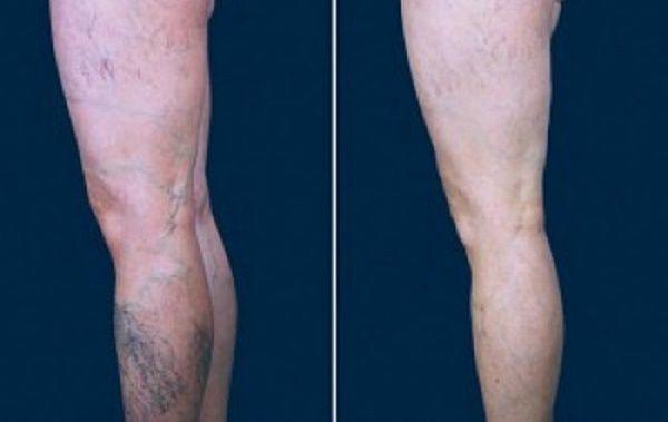 As varizes costumam aparecer nas pernas.Elas são o resultado da má circulação do sangue, que pode ter como causa uma alimentação ruim e/ou a a falta de atividade física.