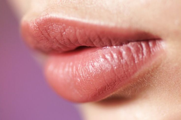 ¿Qué significa cuando tu labio superior está hinchado? | Muy Fitness