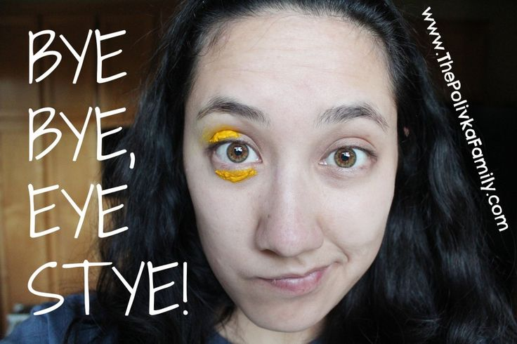Do you get eye styes? See how to reverse them in 5 minutes with this simple trick!