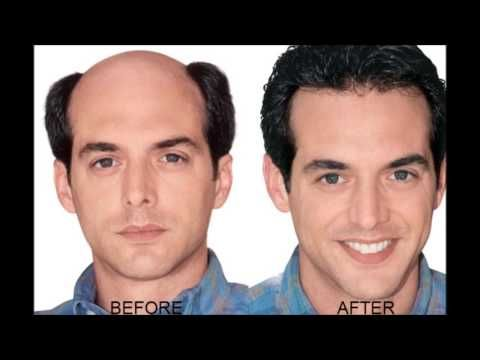 surgery to remove fat from face