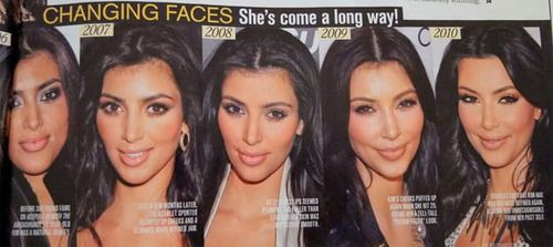 Kim Kardashian Before  After Cosmetic Surgery