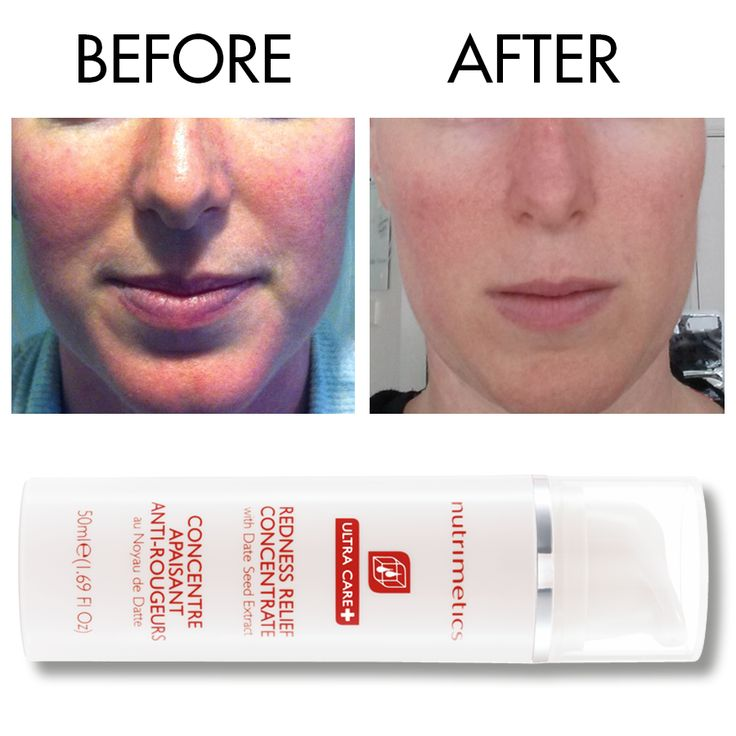 Nutrimetics Redness Relief Concentrate Before and After