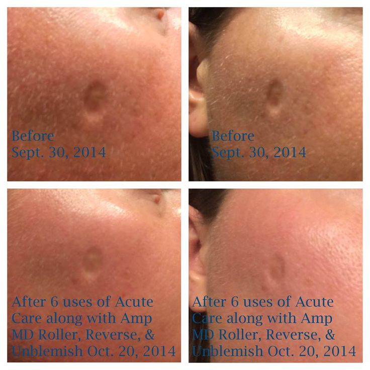 produit contre cicatrice acné rosacée homéopathie