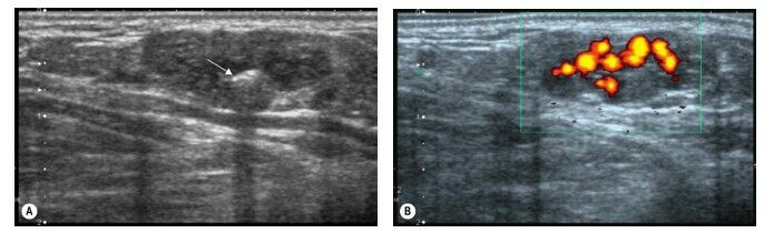 Superficial Haemangioma Of The Dorsal Aspect Of The Foot The Haemangioma Contains A Small Phlebolith With Posterior Acoustic Shadow Country Flags Image Poster