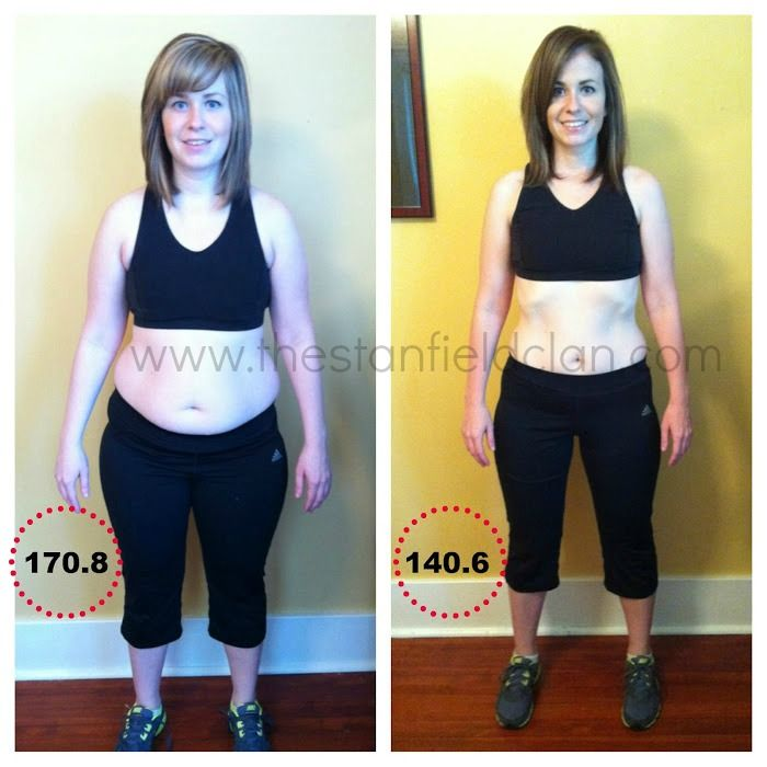 Expected Weight Loss From Gastric Sleeve Surgery – Calculator