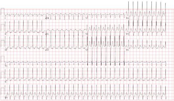 Atrioventricular node reentrant tachycardia (AVNRT) This ECG shows a