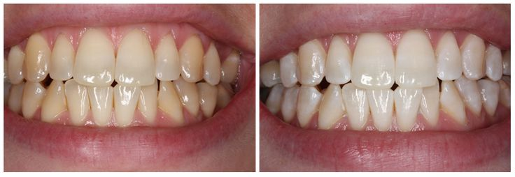 Gallery - Dental Cleaning Toronto - Dental Hygienist at Downtown Dental Hygiene Clinic - Teeth Cleaning