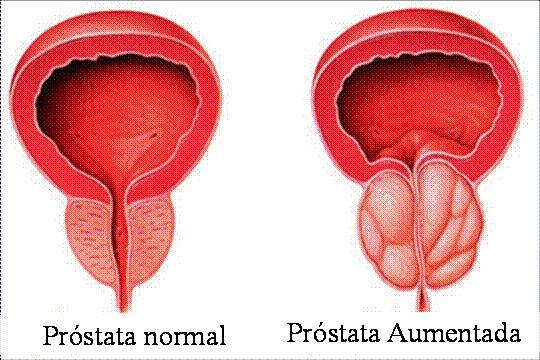 Aplicação de Botox em Urologia, Bexiga ~ PcD On-Line