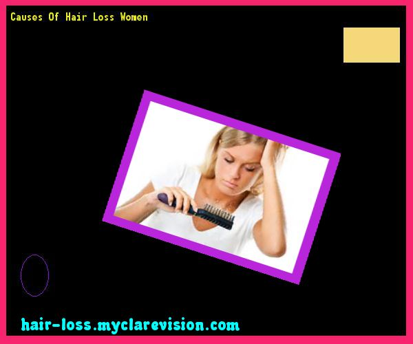 Causes Of Hair Loss Women 073724 - Hair Loss Cure! #hairlosscauses #hairlosstreatment