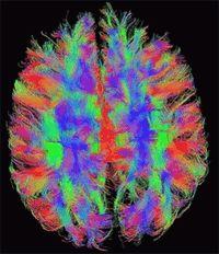 O mito do lado esquerdo X lado direito do cérebro  Olhe para o cérebro humano: uma paisagem irregular e visivelmente dividida em um lado esquerdo e um direito. Esta estrutura inspirou uma das ideias mais difundidas sobre o cérebro: que o lado esquerdo controla a lógica e o lado direito a criatividade. No entanto este é um mito não apoiado por evidências científicas.  Então como surgiu esta ideia errônea e o que há de errado? É verdade que o cérebro tem um lado direito e um esquerdo. Isso é…