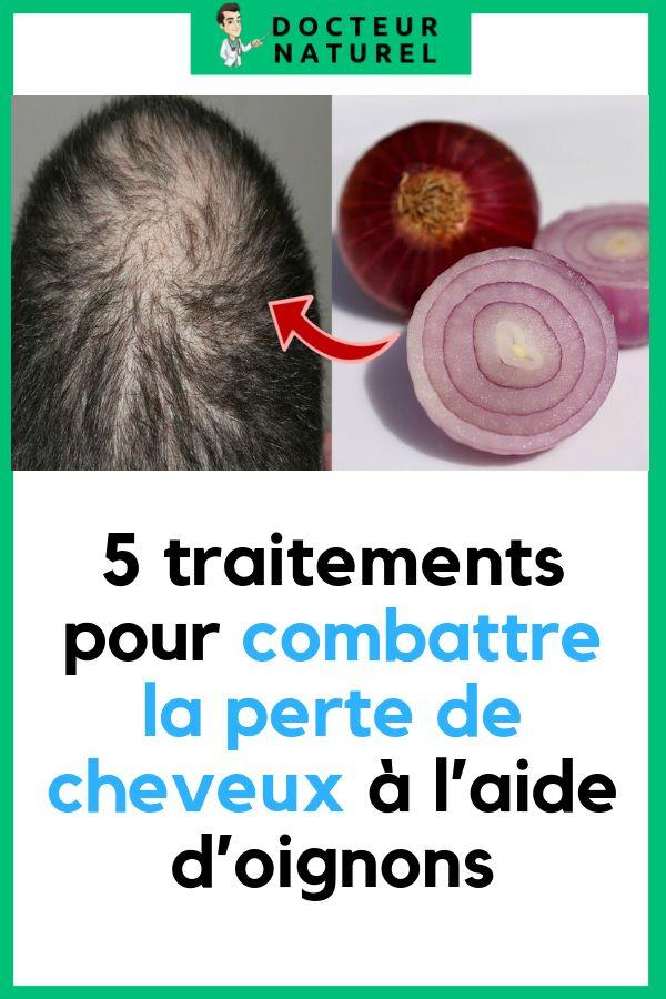5 traitements pour combattre la perte de cheveux à l'aide d'oignons