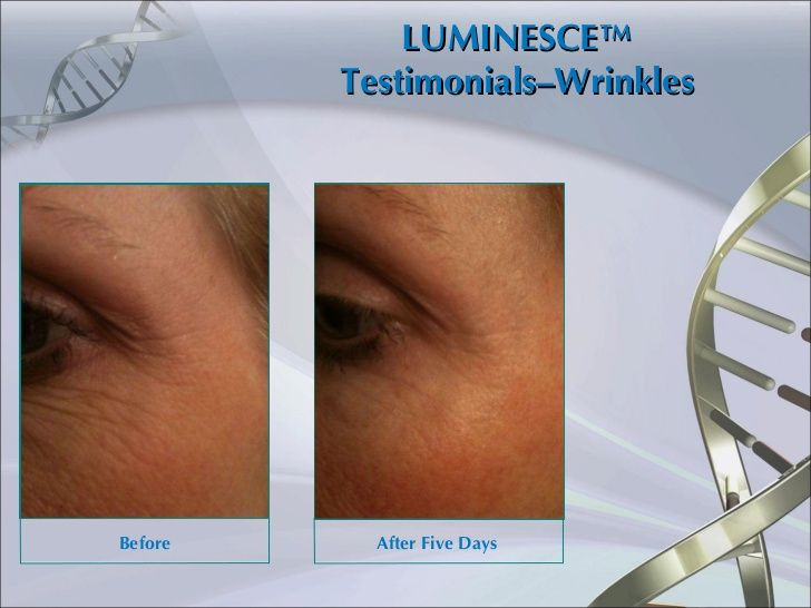 luminesce before and after - Google Search