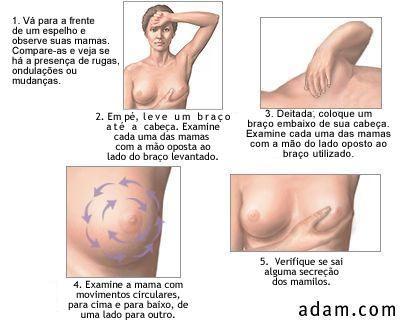 TAG auto exame cancer de mama - Pesquisa Google