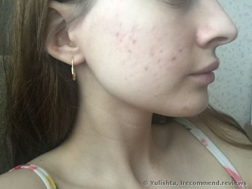 The 25+ best Avene for acne ideas on Pinterest Avene products - Küchen Für Kinder