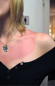How to get rid of sun burn!