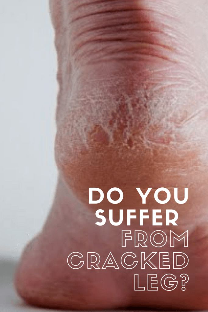 how to get rid of dry cracked feet quickly