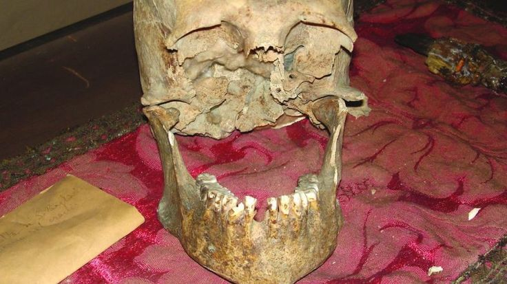 Remains of a skull attributed to Pliny the Elder from the Museo di Storia dell'Arte Sanitaria in Rome. The skill is largely complete but  missing the upper jawbone entirely, and is missing a bottom tooth. The eye sockets are broken.