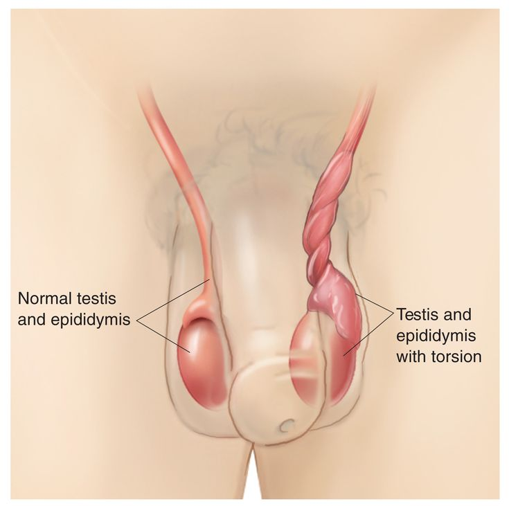 Twisted Hip Natural Remedies