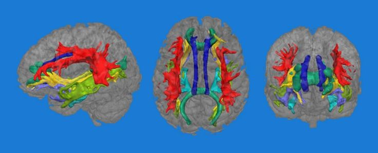 Scientists have identified a link between depression and the structure of white matter in the brain, those areas responsible for connecting up grey matter and making sure our emotions and thoughts are properly processed.