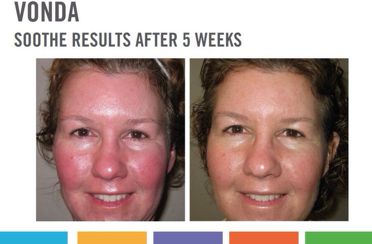 Love these results!