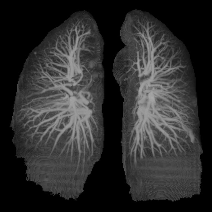 8 best images about Lungs on Pinterest | Chest tube ...