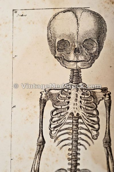 32 best Skeletal images on Pinterest   Medical illustration, 19th ...
