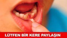 Anneler babalar lütfen evlatlarınızın süt dişlerini saklayın....