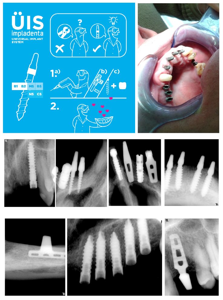UIS IMPLADENTA - Universal Implant System. Presented in Dental Tribune TODAY during IDS 2017 | Cologne | One - two piece dental implants