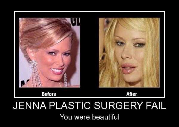 63 Best Plastic Surgery Mistakes Images On Pinterest